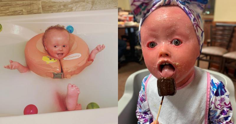 Newborn Baby With Harlequin Ichthyosis - newborn baby
